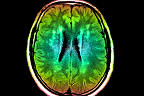 Color enhanced axial FLAIR MIR of the brain